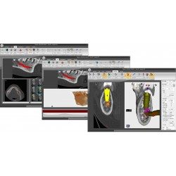 3D Software for Guided Implantology